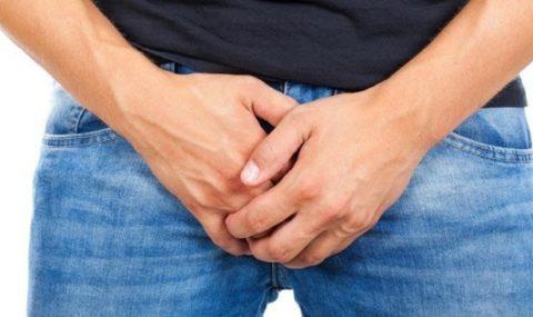 Noviembre azul: Al año, cerca de 70 paraguayos pierden el pene a causa del cáncer